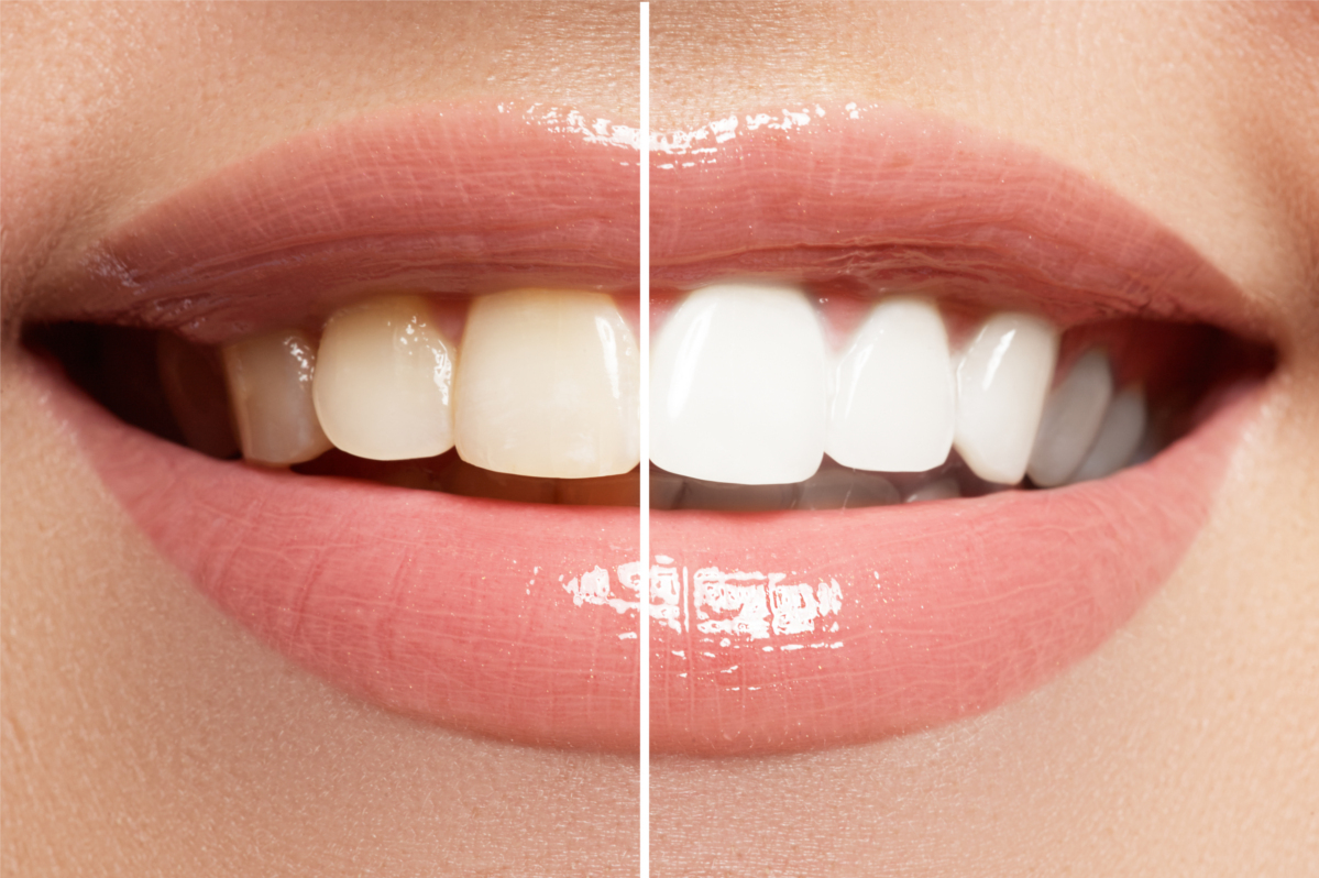 Whitening Tips - True Dental | West Kelowna Dentist