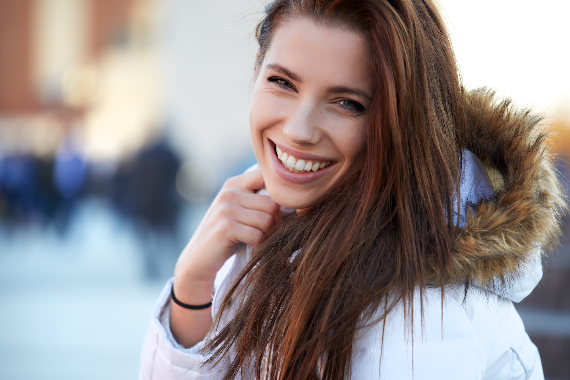 Teeth Whitening | West Kelowna Dentist