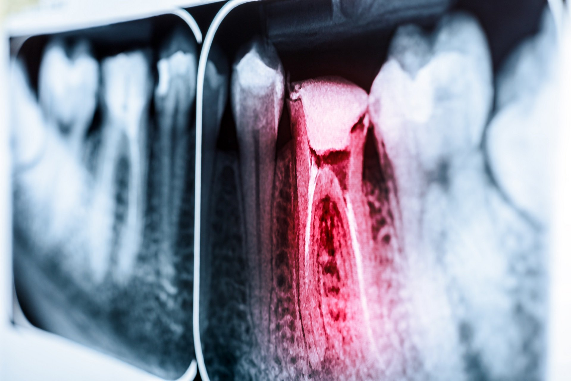 infected-tooth-XRay-root-canal-procedure